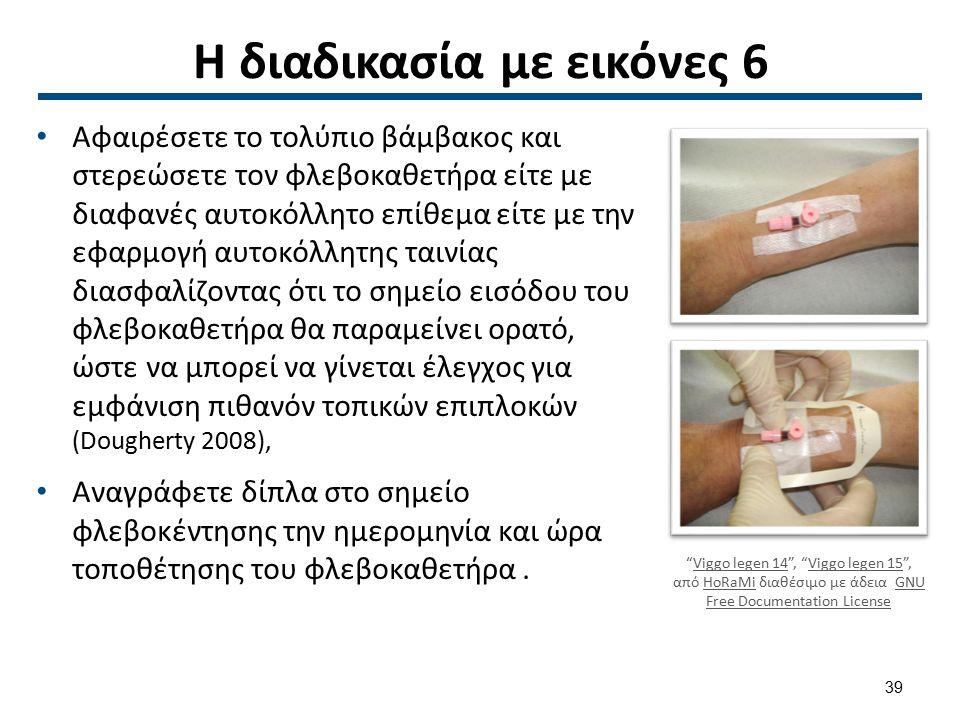 Η διαδικασία με εικόνες 6 Αφαιρέσετε το τολύπιο βάμβακος και στερεώσετε τον φλεβοκαθετήρα είτε με διαφανές αυτοκόλλητο επίθεμα είτε με την εφαρμογή αυ