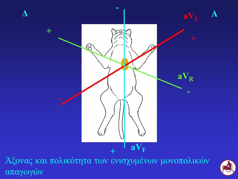 Άξονας και πολικότητα των ενισχυμένων μονοπολικών απαγωγών Δ Α aV R + - aV L + - aV F + -