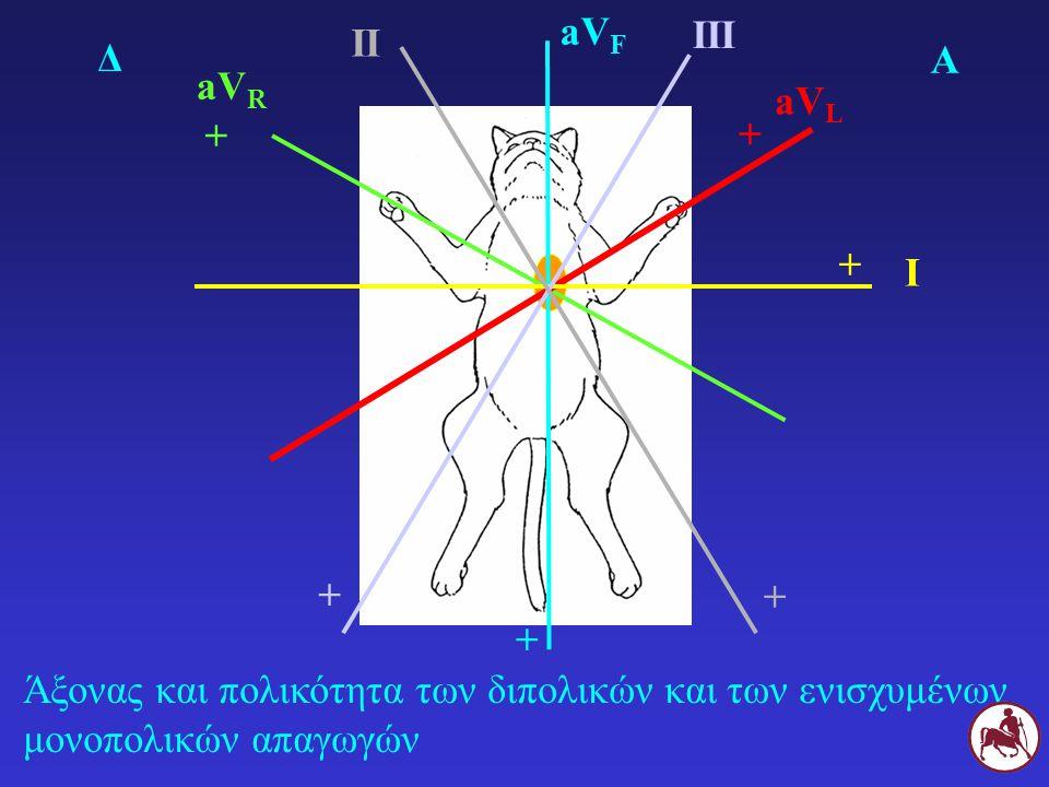 Άξονας και πολικότητα των διπολικών και των ενισχυμένων μονοπολικών απαγωγών Δ Α aV R + aV L + aV F + I + III II + +
