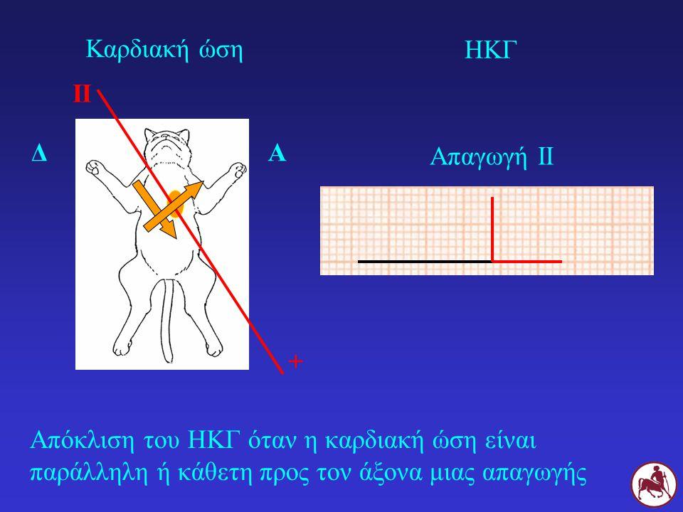 Απόκλιση του ΗΚΓ όταν η καρδιακή ώση είναι παράλληλη ή κάθετη προς τον άξονα μιας απαγωγής ΔΑ II + Καρδιακή ώση ΗΚΓ Απαγωγή ΙΙ
