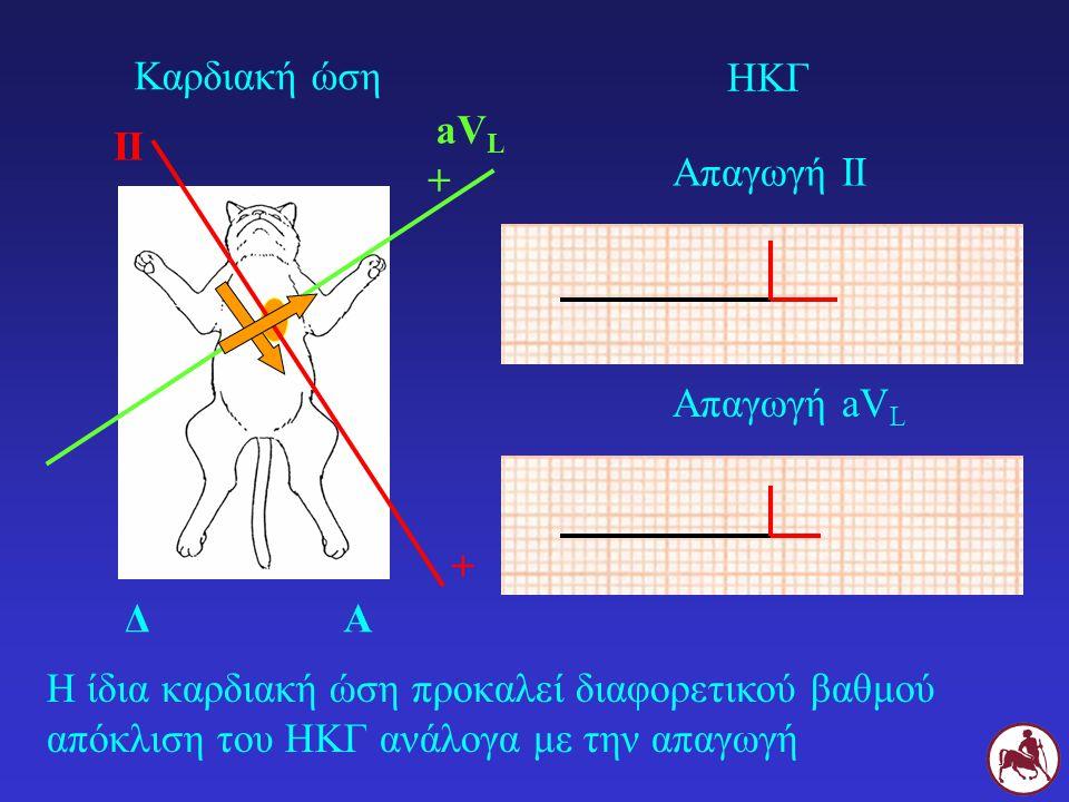 Η ίδια καρδιακή ώση προκαλεί διαφορετικού βαθμού απόκλιση του ΗΚΓ ανάλογα με την απαγωγή ΔΑ II + Καρδιακή ώση ΗΚΓ Απαγωγή ΙΙ aV L + Απαγωγή aV L