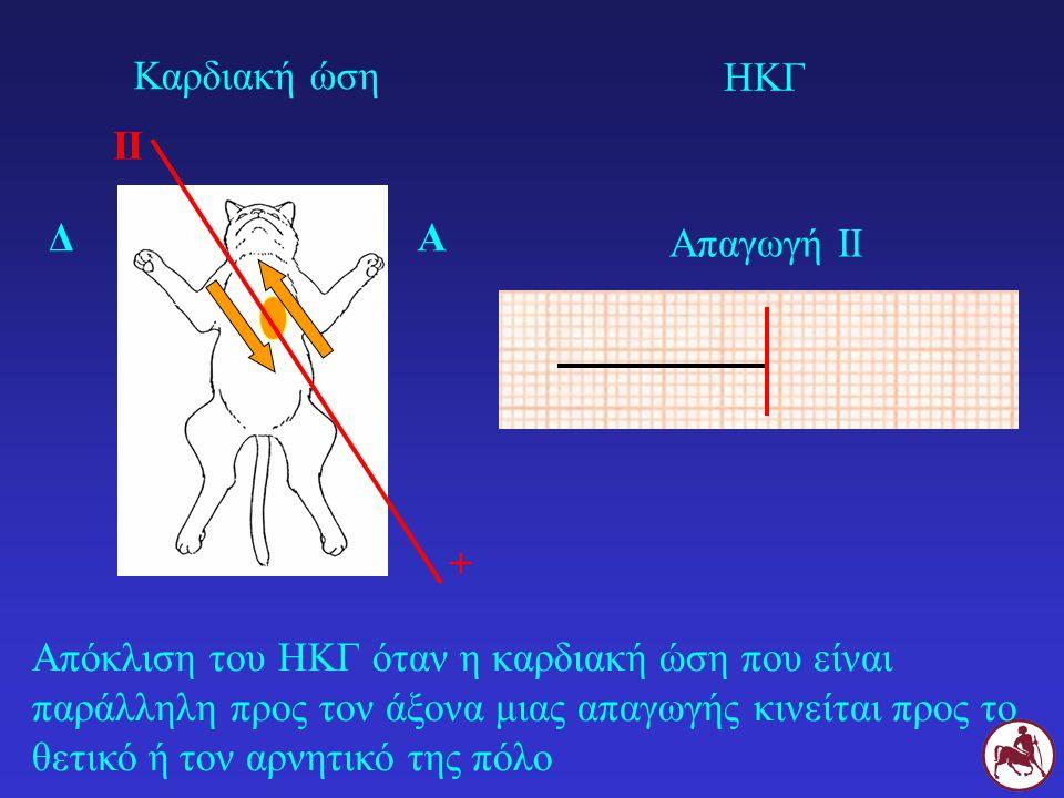 Απόκλιση του ΗΚΓ όταν η καρδιακή ώση που είναι παράλληλη προς τον άξονα μιας απαγωγής κινείται προς το θετικό ή τον αρνητικό της πόλο ΔΑ II + Καρδιακή
