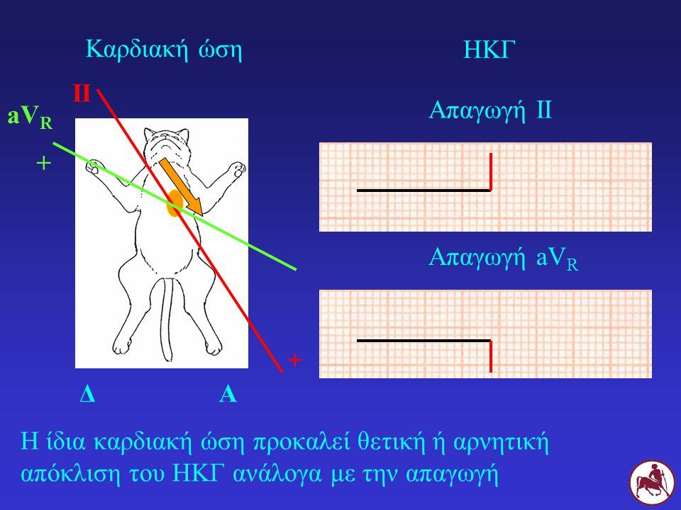 Η ίδια καρδιακή ώση προκαλεί θετική ή αρνητική απόκλιση του ΗΚΓ ανάλογα με την απαγωγή ΔΑ II + Καρδιακή ώση ΗΚΓ Απαγωγή ΙΙ aV R + Απαγωγή aV R