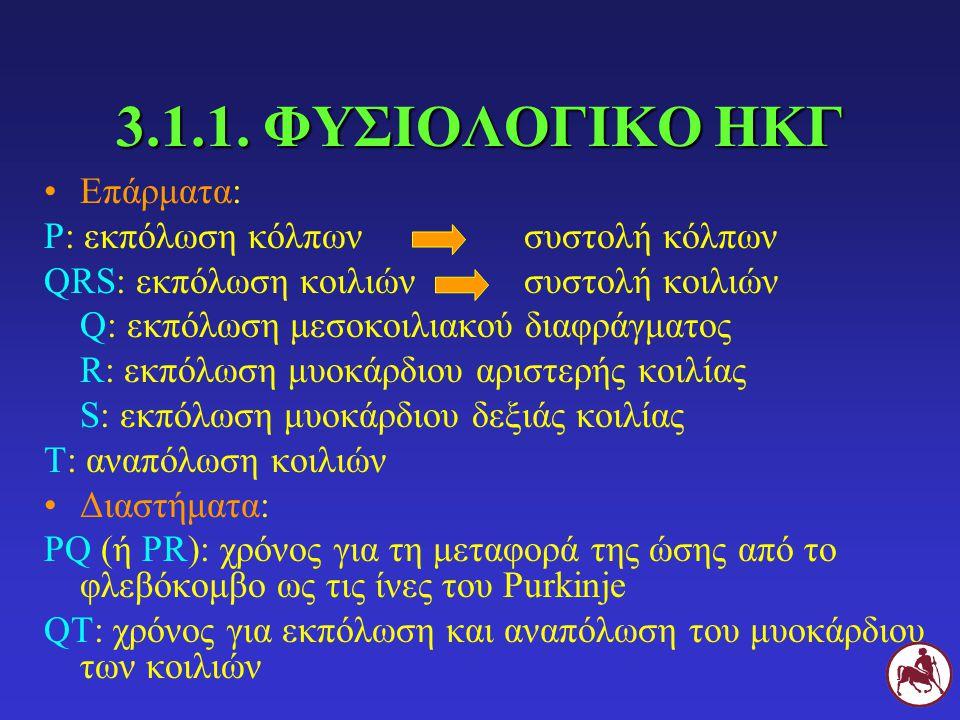 3.1.1. ΦΥΣΙΟΛΟΓΙΚΟ ΗΚΓ Επάρματα: Ρ: εκπόλωση κόλπωνσυστολή κόλπων QRS: εκπόλωση κοιλιώνσυστολή κοιλιών Q: εκπόλωση μεσοκοιλιακού διαφράγματος R: εκπόλ