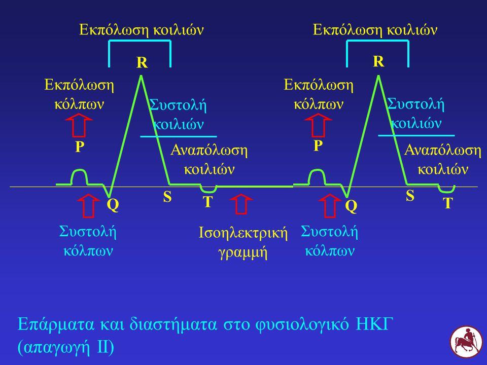 Επάρματα και διαστήματα στο φυσιολογικό ΗΚΓ (απαγωγή ΙΙ) Ισοηλεκτρική γραμμή Ρ Ρ Εκπόλωση κόλπων Εκπόλωση κόλπων Συστολή κόλπων Q Q R R S S Εκπόλωση κ
