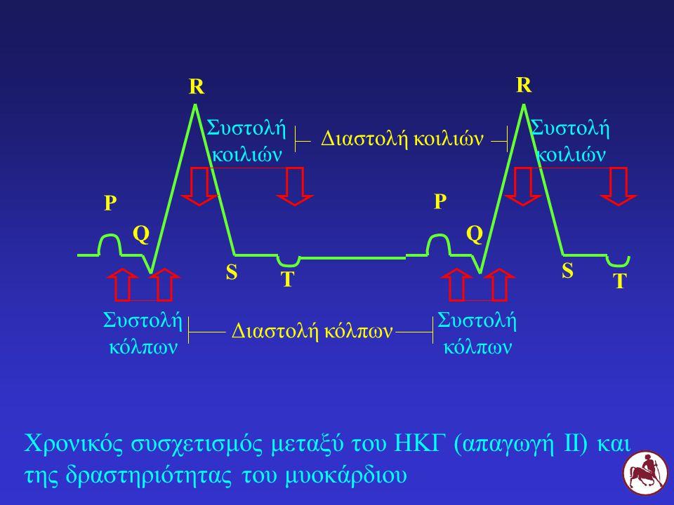 Χρονικός συσχετισμός μεταξύ του ΗΚΓ (απαγωγή ΙΙ) και της δραστηριότητας του μυοκάρδιου Ρ Ρ Συστολή κόλπων QQ R R S S Συστολή κοιλιών Τ Τ Συστολή κόλπω