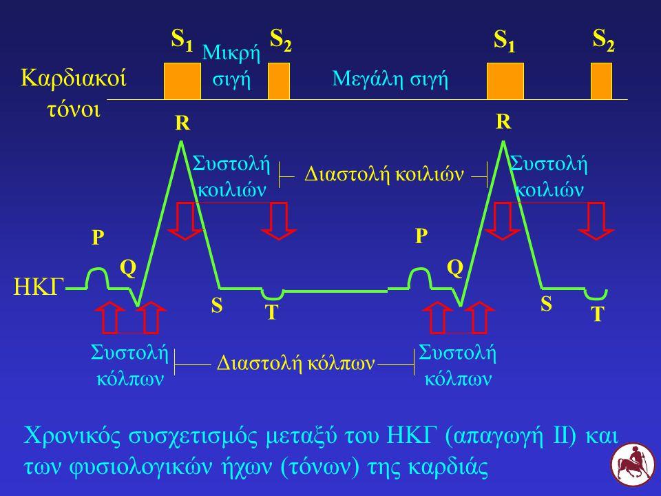 Χρονικός συσχετισμός μεταξύ του ΗΚΓ (απαγωγή ΙΙ) και των φυσιολογικών ήχων (τόνων) της καρδιάς Ρ Ρ Συστολή κόλπων QQ R R S S Συστολή κοιλιών Τ Τ Συστο