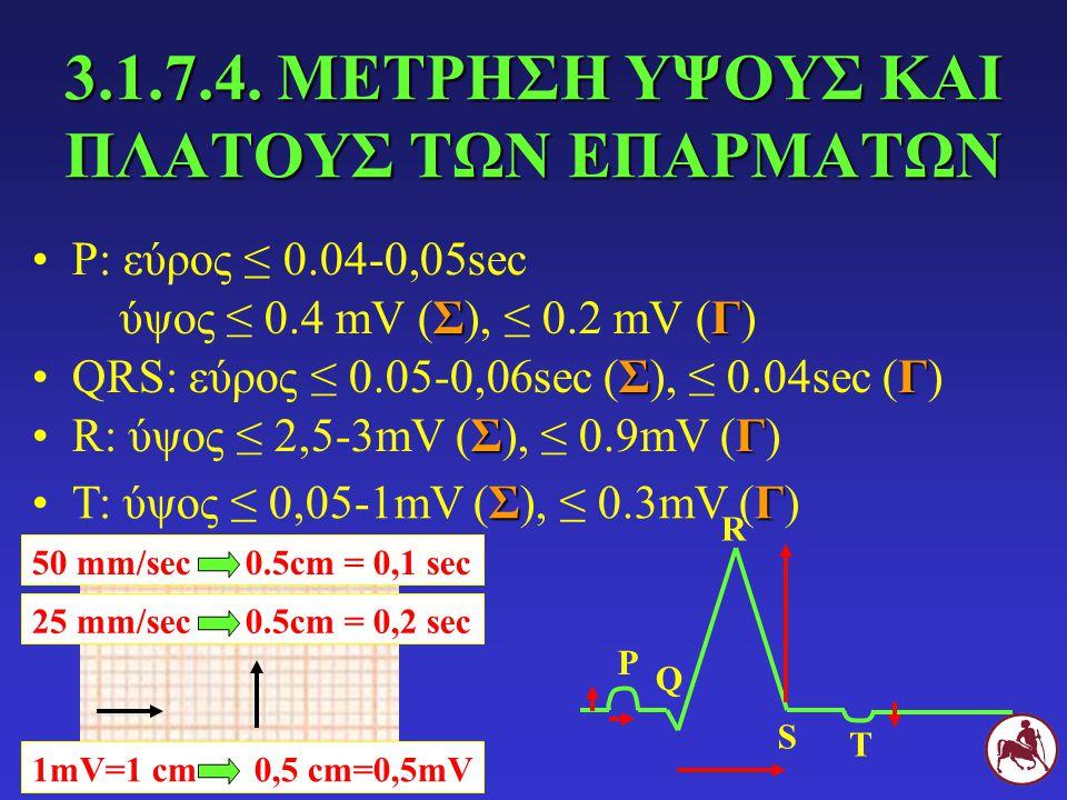 3.1.7.4. ΜΕΤΡΗΣΗ ΥΨΟΥΣ ΚΑΙ ΠΛΑΤΟΥΣ ΤΩΝ ΕΠΑΡΜΑΤΩΝ Ρ: εύρος ≤ 0.04-0,05sec Ρ Q R S Τ ΣΓ ύψος ≤ 0.4 mV (Σ), ≤ 0.2 mV (Γ) ΣΓQRS: εύρος ≤ 0.05-0,06sec (Σ),