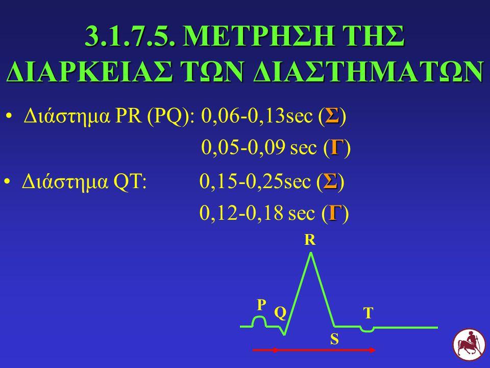 3.1.7.5. ΜΕΤΡΗΣΗ ΤΗΣ ΔΙΑΡΚΕΙΑΣ ΤΩΝ ΔΙΑΣΤΗΜΑΤΩΝ ΣΔιάστημα PR (PQ): 0,06-0,13sec (Σ) Γ 0,05-0,09 sec (Γ) Ρ Q R S Τ ΣΔιάστημα QT: 0,15-0,25sec (Σ) Γ 0,12