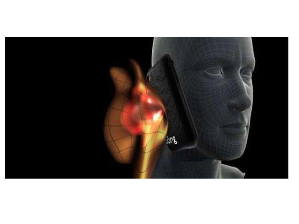 Τρόποι προστασίας Απομακρύνετε το κινητό από το κεφάλι σας κατά την διάρκεια των κλήσεων, χρησιμοποιώντας ανοιχτή ακρόαση ή καλώδιο hands-free.