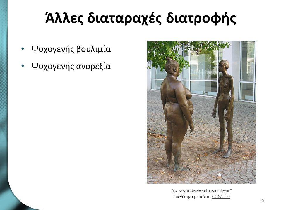 """Άλλες διαταραχές διατροφής Ψυχογενής βουλιμία Ψυχογενής ανορεξία 5 """"LA2-vx06-konsthallen-skulptur"""" διαθέσιμο με άδεια CC SA 1.0LA2-vx06-konsthallen-sk"""