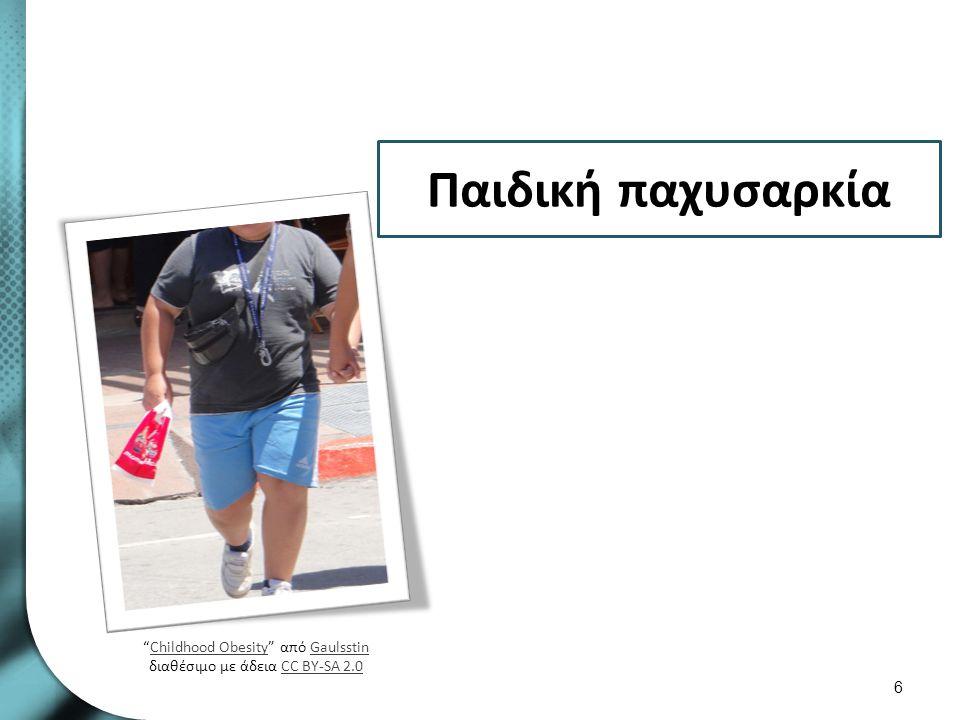 """Παιδική παχυσαρκία 6 """"Childhood Obesity"""" από Gaulsstin διαθέσιμο με άδεια CC BY-SA 2.0Childhood ObesityGaulsstinCC BY-SA 2.0"""