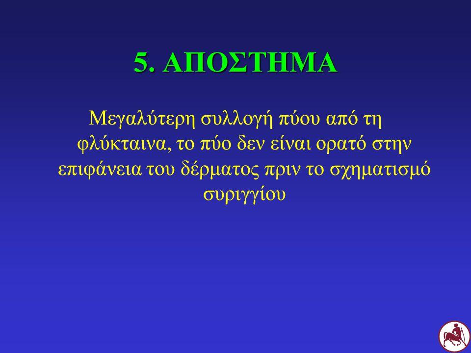 5. ΑΠΟΣΤΗΜΑ Μεγαλύτερη συλλογή πύου από τη φλύκταινα, το πύο δεν είναι ορατό στην επιφάνεια του δέρματος πριν το σχηματισμό συριγγίου