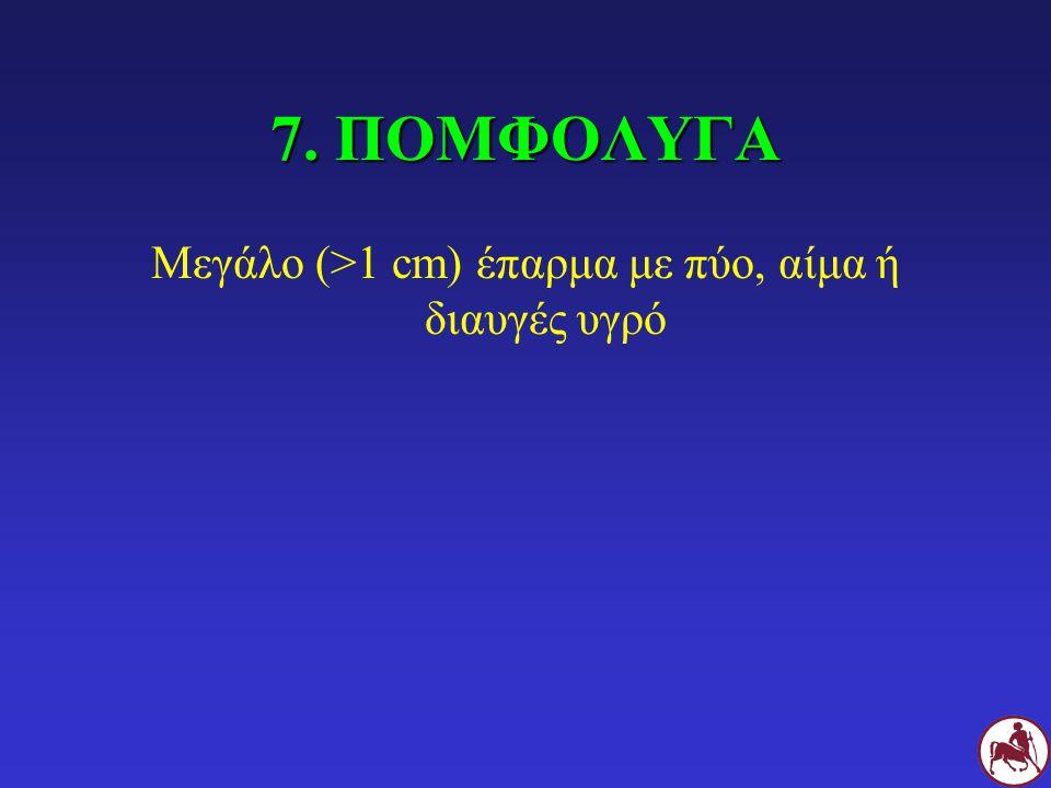 7. ΠΟΜΦΟΛΥΓΑ Μεγάλο (>1 cm) έπαρμα με πύο, αίμα ή διαυγές υγρό