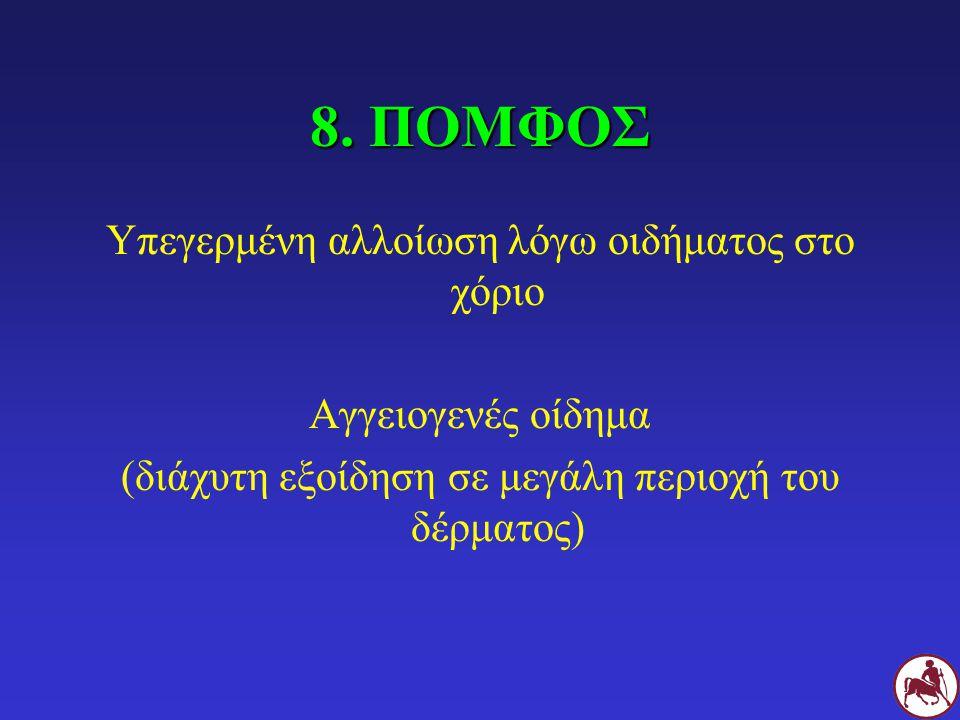 8. ΠΟΜΦΟΣ Υπεγερμένη αλλοίωση λόγω οιδήματος στο χόριο Αγγειογενές οίδημα (διάχυτη εξοίδηση σε μεγάλη περιοχή του δέρματος)