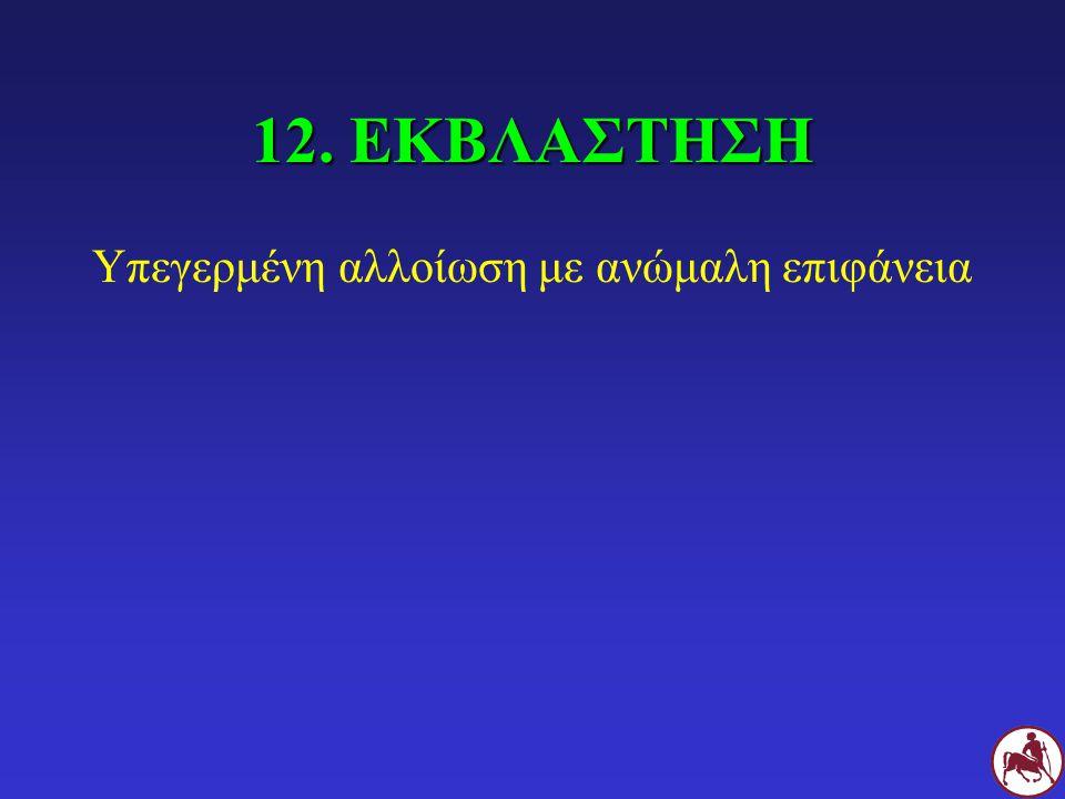 12. ΕΚΒΛΑΣΤΗΣΗ Υπεγερμένη αλλοίωση με ανώμαλη επιφάνεια