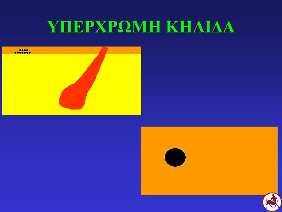 Σ Υπέρχρωμη κηλίδα και περιφερική επιδερμική αποκόλληση σε Σ με επιπολής βακτηριδιακή δερματίτιδα
