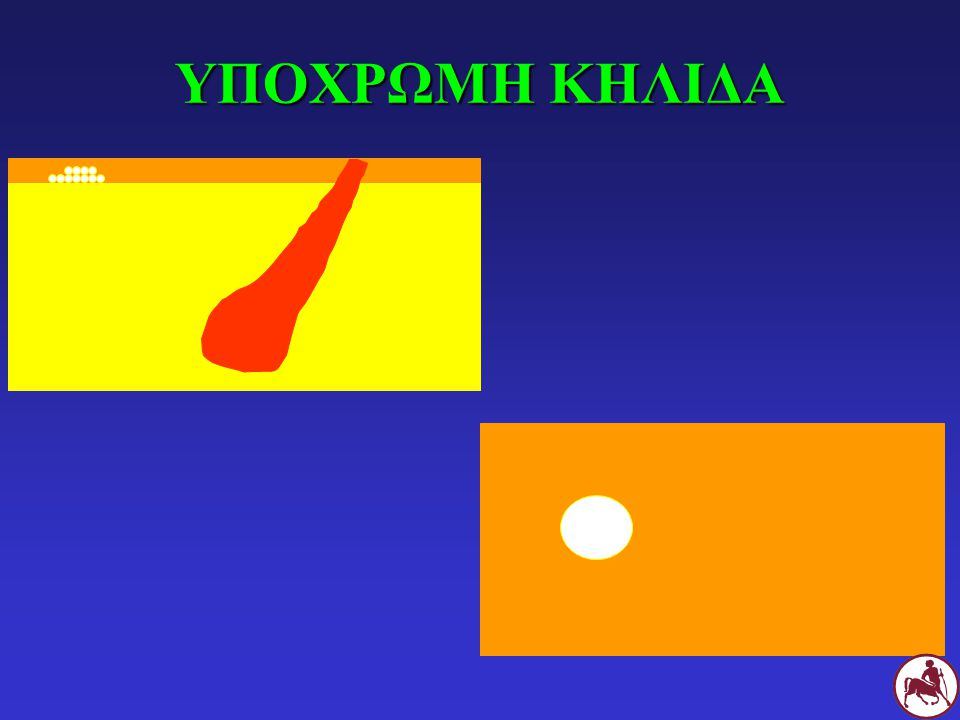 10. ΟΓΚΟΣ Μεγάλη μάζα Νεόπλασμα, κοκκίωμα, σπίλος κλπ