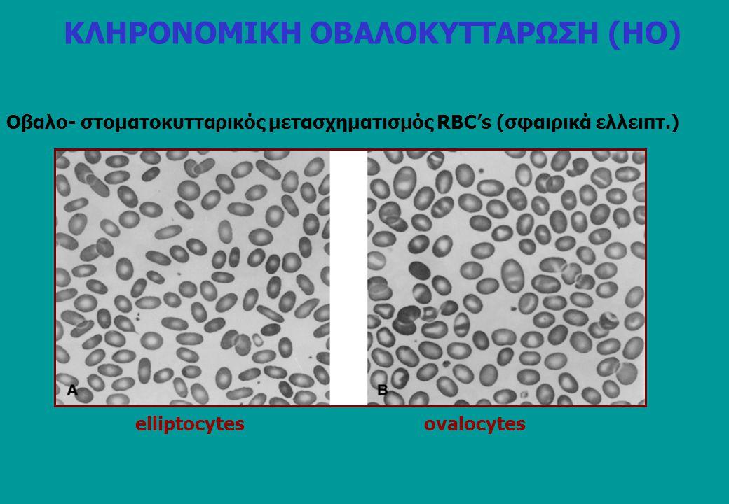 Οβαλο- στοματοκυτταρικός μετασχηματισμός RBC's (σφαιρικά ελλειπτ.) elliptocytes ovalocytes ΚΛΗΡΟΝΟΜΙΚΗ ΟΒΑΛΟΚΥΤΤΑΡΩΣΗ (ΗO)