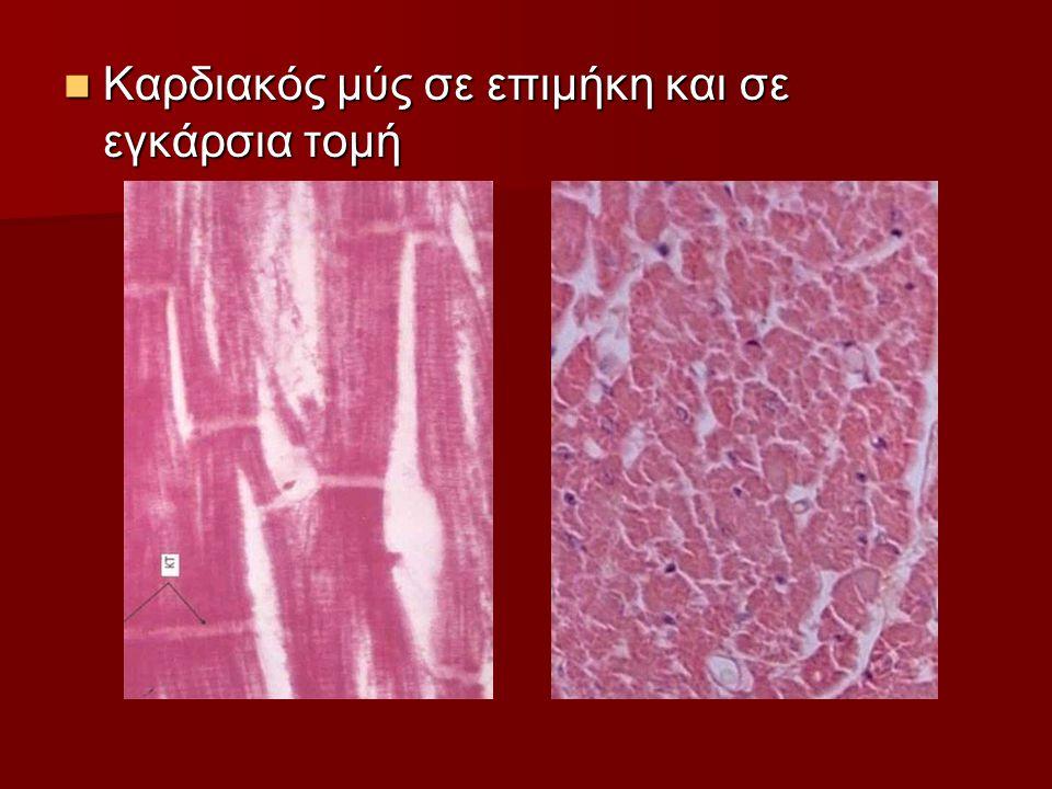 Καρδιακός μύς σε επιμήκη και σε εγκάρσια τομή Καρδιακός μύς σε επιμήκη και σε εγκάρσια τομή