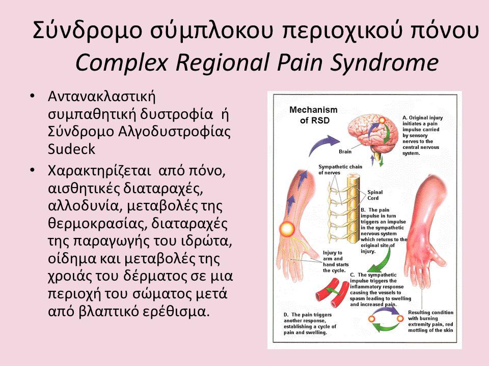 Σύνδρομο σύμπλοκου περιοχικού πόνου Complex Regional Pain Syndrome Αντανακλαστική συμπαθητική δυστροφία ή Σύνδρομο Αλγοδυστροφίας Sudeck Χαρακτηρίζετα