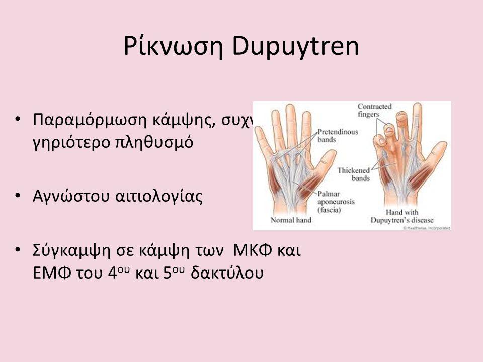 Ρίκνωση Dupuytren Παραμόρμωση κάμψης, συχνά στο γηριότερο πληθυσμό Αγνώστου αιτιολογίας Σύγκαμψη σε κάμψη των ΜΚΦ και ΕΜΦ του 4 ου και 5 ου δακτύλου