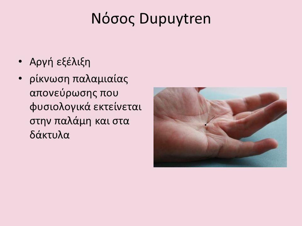 Νόσος Dupuytren Αργή εξέλιξη ρίκνωση παλαμιαίας απονεύρωσης που φυσιολογικά εκτείνεται στην παλάμη και στα δάκτυλα