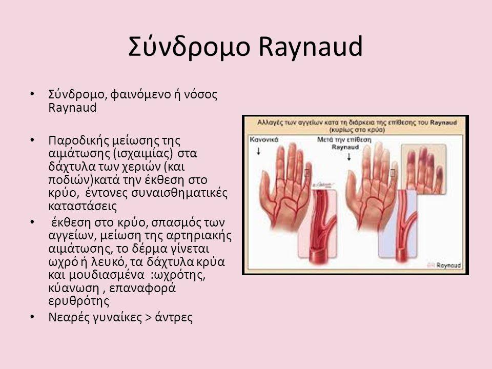 Σύνδρομο Raynaud Σύνδρομο, φαινόμενο ή νόσος Raynaud Παροδικής μείωσης της αιμάτωσης (ισχαιμίας) στα δάχτυλα των χεριών (και ποδιών)κατά την έκθεση στο κρύο, έντονες συναισθηματικές καταστάσεις έκθεση στο κρύο, σπασμός των αγγείων, μείωση της αρτηριακής αιμάτωσης, το δέρμα γίνεται ωχρό ή λευκό, τα δάχτυλα κρύα και μουδιασμένα :ωχρότης, κύανωση, επαναφορά ερυθρότης Νεαρές γυναίκες > άντρες