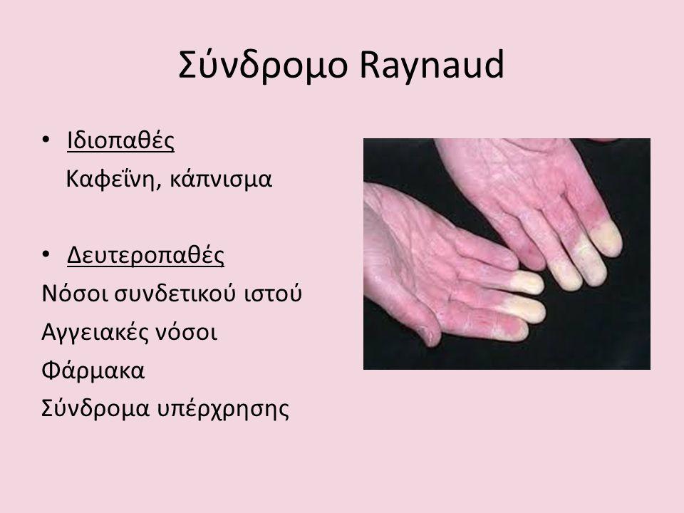 Σύνδρομο Raynaud Ιδιοπαθές Καφεΐνη, κάπνισμα Δευτεροπαθές Νόσοι συνδετικού ιστού Αγγειακές νόσοι Φάρμακα Σύνδρομα υπέρχρησης