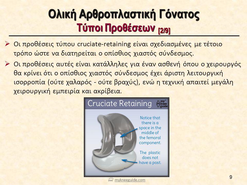 Ολική Αρθροπλαστική Γόνατος Τύποι Προθέσεων [2/9]  Οι προθέσεις τύπου cruciate-retaining είναι σχεδιασμένες με τέτοιο τρόπο ώστε να διατηρείται ο οπί