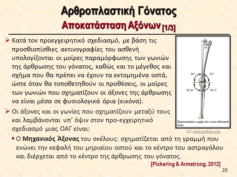 Αρθροπλαστική Γόνατος Αποκατάσταση Αξόνων [1/3]  Κατά τον προεγχειρητικό σχεδιασμό, με βάση τις προσθιοπίσθιες ακτινογραφίες του ασθενή υπολογίζονται