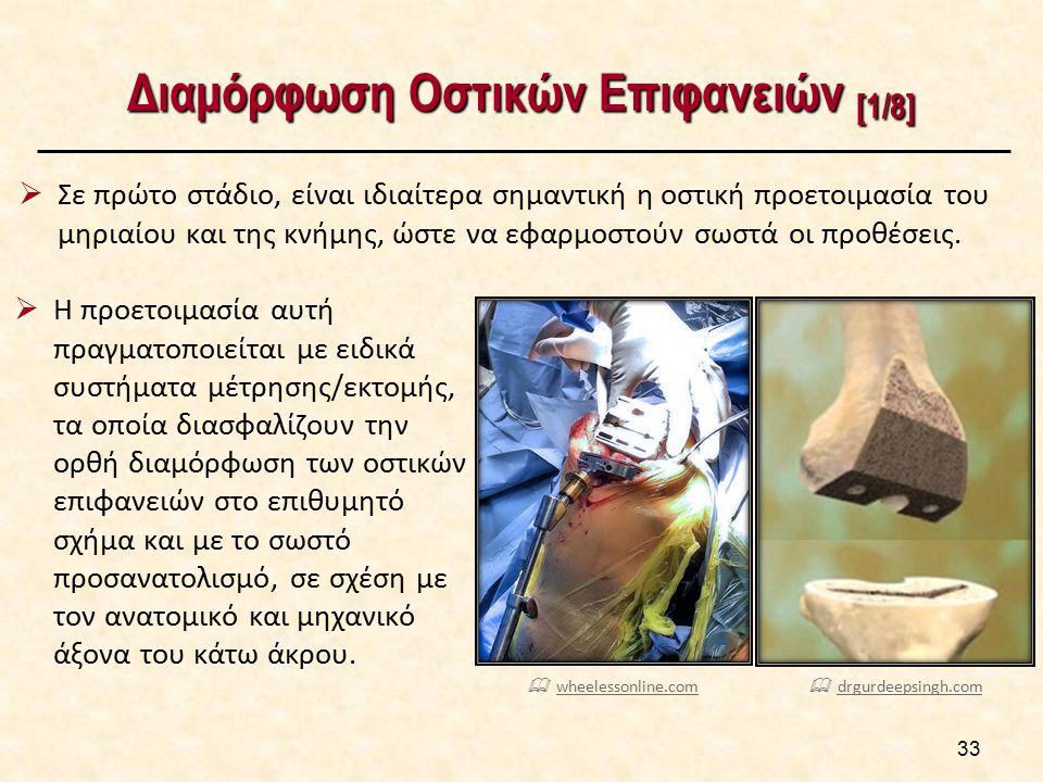 33 Διαμόρφωση Οστικών Επιφανειών [1/8]  Σε πρώτο στάδιο, είναι ιδιαίτερα σημαντική η οστική προετοιμασία του μηριαίου και της κνήμης, ώστε να εφαρμοσ