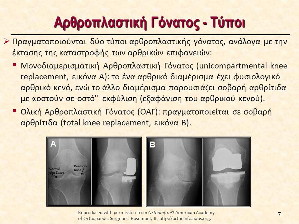 Αρθροπλαστική Γόνατος - Τύποι  Πραγματοποιούνται δύο τύποι αρθροπλαστικής γόνατος, ανάλογα με την έκτασης της καταστροφής των αρθρικών επιφανειών: 