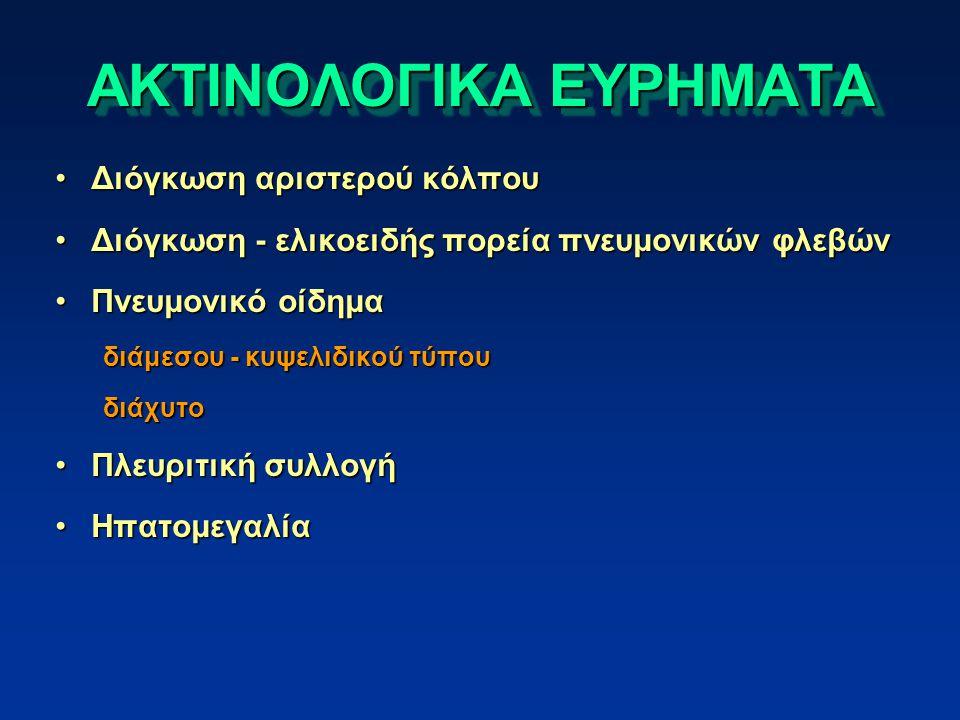 ΑΚΤΙΝΟΛΟΓΙΚΑ ΕΥΡΗΜΑΤΑ Διόγκωση αριστερού κόλπουΔιόγκωση αριστερού κόλπου Διόγκωση - ελικοειδής πορεία πνευμονικών φλεβώνΔιόγκωση - ελικοειδής πορεία πνευμονικών φλεβών Πνευμονικό οίδημαΠνευμονικό οίδημα διάμεσου - κυψελιδικού τύπου διάχυτο Πλευριτική συλλογήΠλευριτική συλλογή ΗπατομεγαλίαΗπατομεγαλία