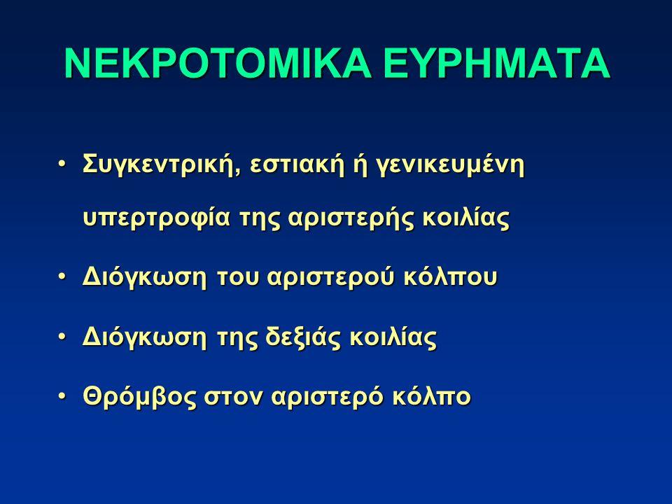 ΝΕΚΡΟΤΟΜΙΚΑ ΕΥΡΗΜΑΤΑ Συγκεντρική, εστιακή ή γενικευμένη υπερτροφία της αριστερής κοιλίαςΣυγκεντρική, εστιακή ή γενικευμένη υπερτροφία της αριστερής κοιλίας Διόγκωση του αριστερού κόλπουΔιόγκωση του αριστερού κόλπου Διόγκωση της δεξιάς κοιλίαςΔιόγκωση της δεξιάς κοιλίας Θρόμβος στον αριστερό κόλποΘρόμβος στον αριστερό κόλπο
