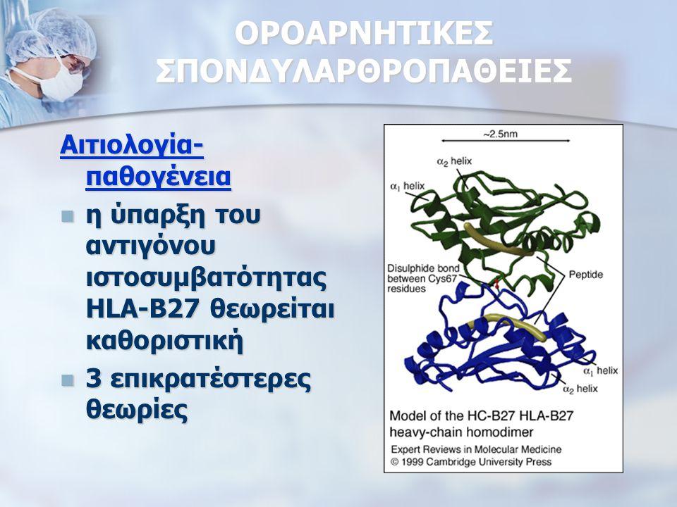 ΟΡΟΑΡΝΗΤΙΚΕΣ ΣΠΟΝΔΥΛΑΡΘΡΟΠΑΘΕΙΕΣ Αιτιολογία- παθογένεια η ύπαρξη του αντιγόνου ιστοσυμβατότητας HLA-B27 θεωρείται καθοριστική η ύπαρξη του αντιγόνου ιστοσυμβατότητας HLA-B27 θεωρείται καθοριστική 3 επικρατέστερες θεωρίες 3 επικρατέστερες θεωρίες