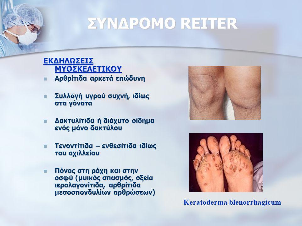 ΣΥΝΔΡΟΜΟ REITER ΕΚΔΗΛΩΣΕΙΣ ΜΥΟΣΚΕΛΕΤΙΚΟΥ Αρθρίτιδα αρκετά επώδυνη Αρθρίτιδα αρκετά επώδυνη Συλλογή υγρού συχνή, ιδίως στα γόνατα Συλλογή υγρού συχνή, ιδίως στα γόνατα Δακτυλίτιδα ή διάχυτο οίδημα ενός μόνο δακτύλου Δακτυλίτιδα ή διάχυτο οίδημα ενός μόνο δακτύλου Τενοντίτιδα – ενθεσίτιδα ιδίως του αχιλλείου Τενοντίτιδα – ενθεσίτιδα ιδίως του αχιλλείου Πόνος στη ράχη και στην οσφύ (μυικός σπασμός, οξεία ιερολαγονίτιδα, αρθρίτιδα μεσοσπονδυλίων αρθρώσεων) Πόνος στη ράχη και στην οσφύ (μυικός σπασμός, οξεία ιερολαγονίτιδα, αρθρίτιδα μεσοσπονδυλίων αρθρώσεων) Keratoderma blenorrhagicum