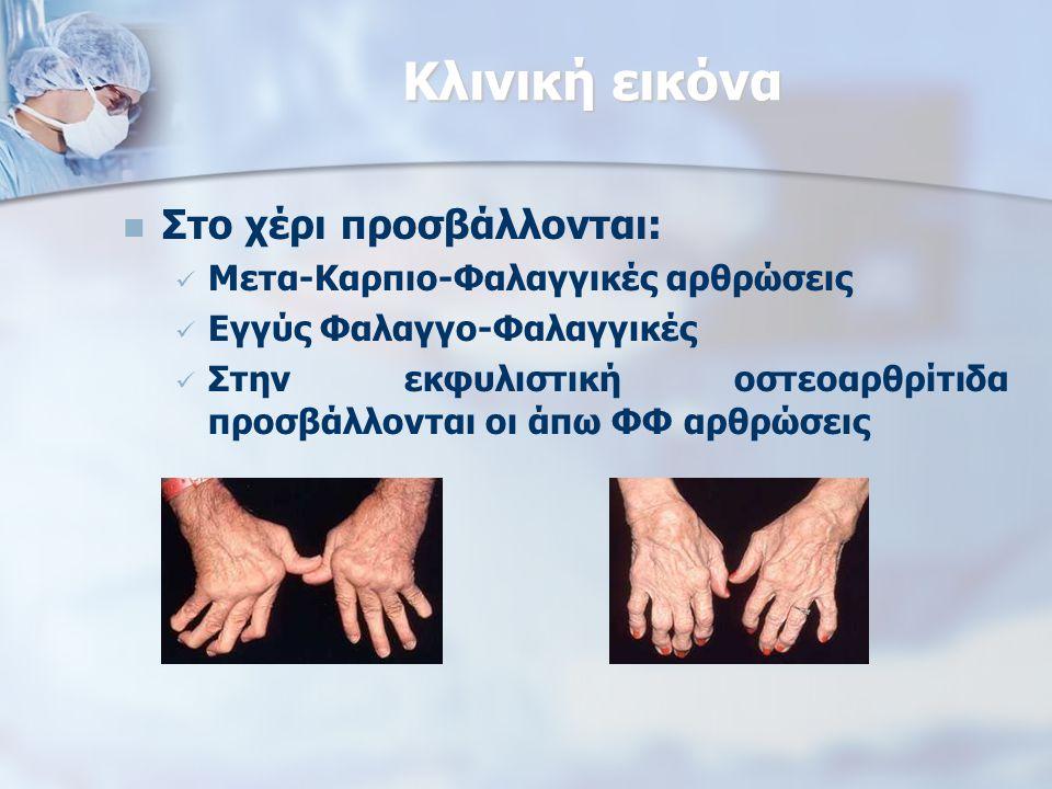 Κλινική εικόνα Στο χέρι προσβάλλονται: Μετα-Καρπιο-Φαλαγγικές αρθρώσεις Εγγύς Φαλαγγο-Φαλαγγικές Στην εκφυλιστική οστεοαρθρίτιδα προσβάλλονται οι άπω ΦΦ αρθρώσεις