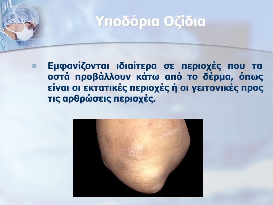 Υποδόρια Οζίδια Εμφανίζονται ιδιαίτερα σε περιοχές που τα οστά προβάλλουν κάτω από το δέρμα, όπως είναι οι εκτατικές περιοχές ή οι γειτονικές προς τις αρθρώσεις περιοχές.