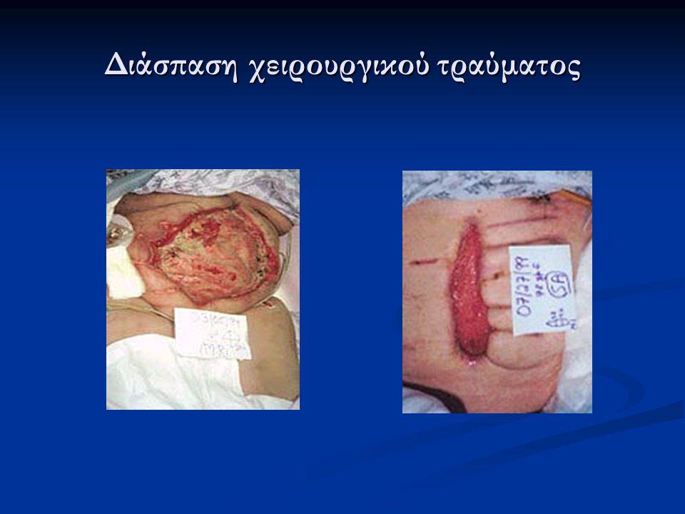 Διάσπαση χειρουργικού τραύματος