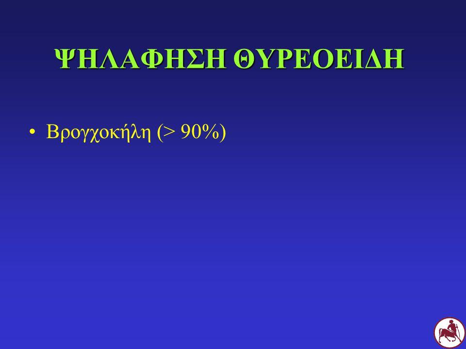 ΜΕΤΡΗΣΗ ΤΤ 4 στο 90-98% των περιστατικών αρχικά στάδια Φ στο 2-10% ή/και συνυπάρχοντα νοσήματα Μέτρηση T 4 + fT 4 Σπινθηρογράφημα θυρεοειδή Δοκιμή καταστολής με Τ 3 Δοκιμή διέγερσης με TRH Επανέλεγχος σε >1-2 εβδομάδες (+fΤ 4 )