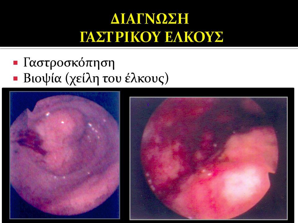  Γαστροσκόπηση  Βιοψία (χείλη του έλκους)