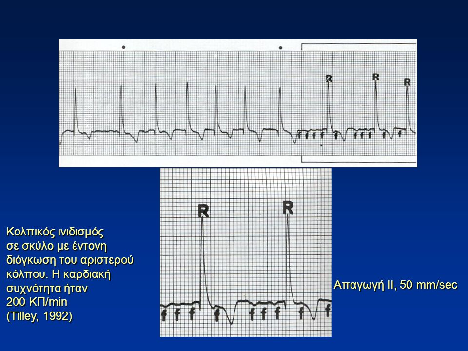 Κολπικός ινιδισμός σε σκύλο με έντονη διόγκωση του αριστερού κόλπου. Η καρδιακή συχνότητα ήταν 200 ΚΠ/min (Tilley, 1992) Απαγωγή ΙΙ, 50 mm/sec