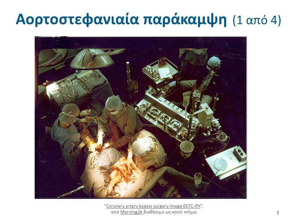 Αορτοστεφανιαία παράκαμψη (1 από 4) 1 Coronary artery bypass surgery Image 657C-PH , από Morning2k διαθέσιμο ως κοινό κτήμαCoronary artery bypass surgery Image 657C-PHMorning2k