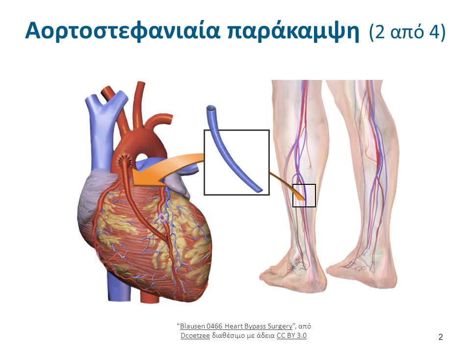 Αορτοστεφανιαία παράκαμψη (2 από 4) 2 Blausen 0466 Heart Bypass Surgery , από Dcoetzee διαθέσιμο με άδεια CC BY 3.0Blausen 0466 Heart Bypass Surgery DcoetzeeCC BY 3.0