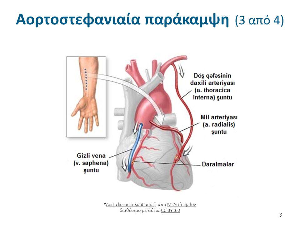 Μετεγχειρητική φροντίδα (18 από 20) Διαταραχή νοητικών λειτουργιών.