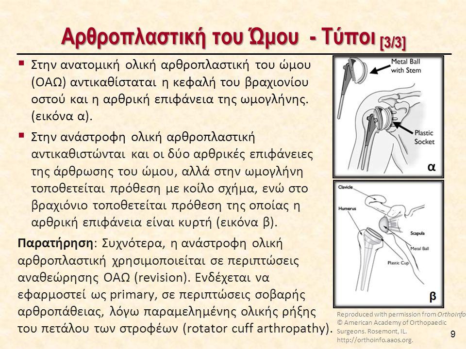 Αρθροπλαστική του Ώμου - Τύποι [3/3] 9  Στην ανατομική ολική αρθροπλαστική του ώμου (ΟΑΩ) αντικαθίσταται η κεφαλή του βραχιονίου οστού και η αρθρική επιφάνεια της ωμογλήνης.