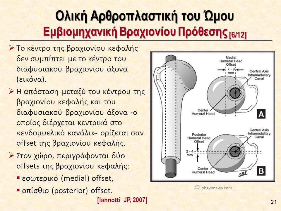 Ολική Αρθροπλαστική του Ώμου Εμβιομηχανική Βραχιονίου Πρόθεσης [6/12]  Το κέντρο της βραχιονίου κεφαλής δεν συμπίπτει με το κέντρο του διαφυσιακού βραχιονίου άξονα (εικόνα).