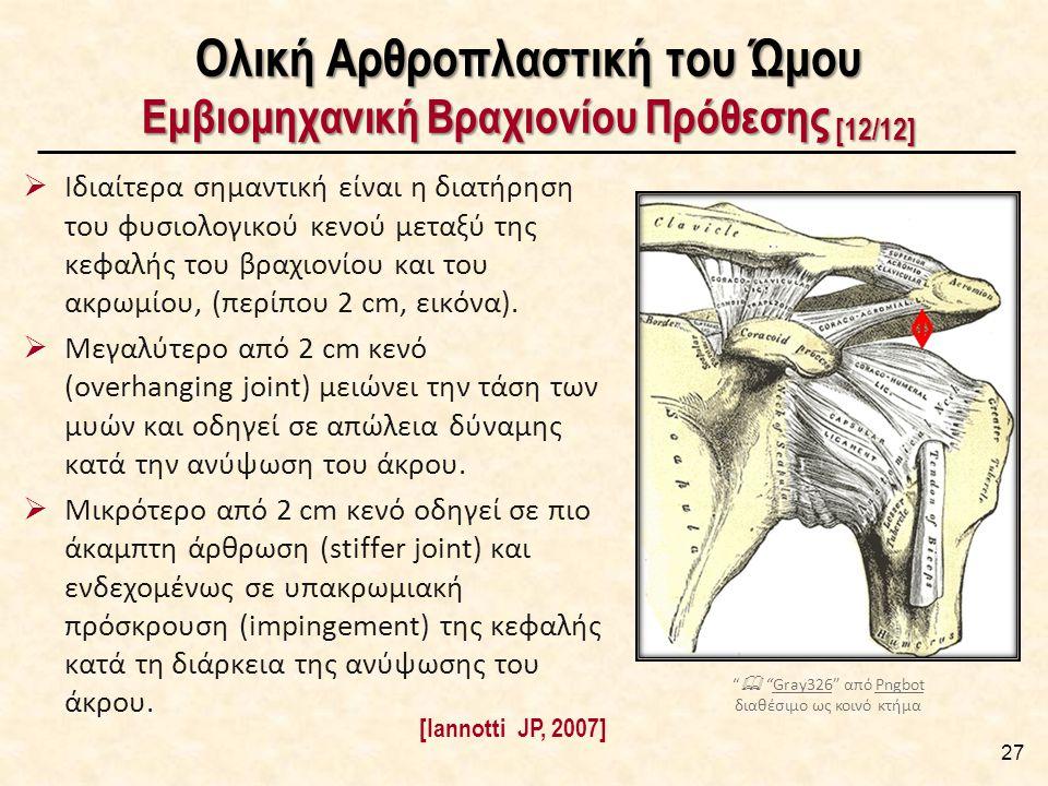 Ολική Αρθροπλαστική του Ώμου Εμβιομηχανική Βραχιονίου Πρόθεσης [12/12]  Ιδιαίτερα σημαντική είναι η διατήρηση του φυσιολογικού κενού μεταξύ της κεφαλής του βραχιονίου και του ακρωμίου, (περίπου 2 cm, εικόνα).