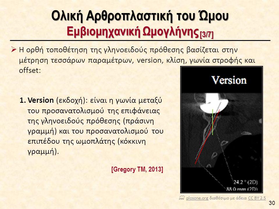 Ολική Αρθροπλαστική του Ώμου Εμβιομηχανική Ωμογλήνης [3/7]  Η ορθή τοποθέτηση της γληνοειδούς πρόθεσης βασίζεται στην μέτρηση τεσσάρων παραμέτρων, version, κλίση, γωνία στροφής και offset: 30 [Gregory TM, 2013] 1.Version (εκδοχή): είναι η γωνία μεταξύ του προσανατολισμού της επιφάνειας της γληνοειδούς πρόθεσης (πράσινη γραμμή) και του προσανατολισμού του επιπέδου της ωμοπλάτης (κόκκινη γραμμή).